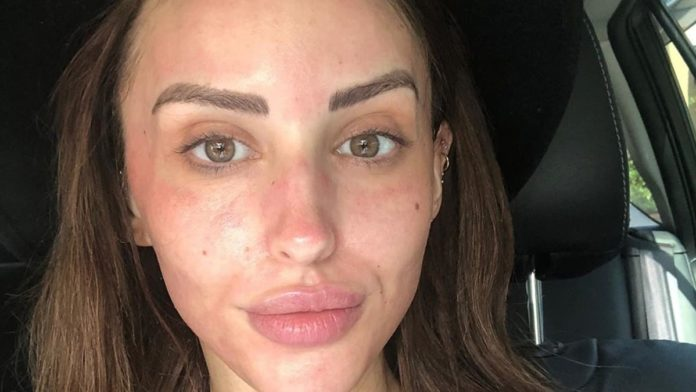 MAFS Lizzie looks stunning with no makeup, but those lip fillers though