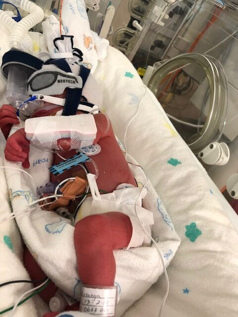 Baby Ezra born 2 months premature with heart complications.